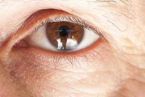 oogziekte foto