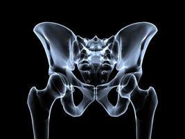 bekken röntgen foto