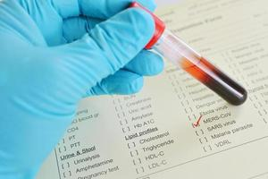 bloed voor het testen van mannen foto