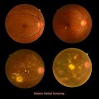 medische fototractie (oogscherm) diabetes retinale screening foto