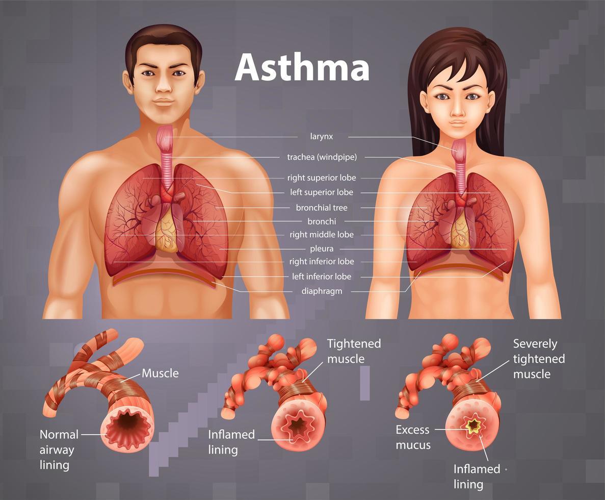educatieve informatie over astmatische longen vector