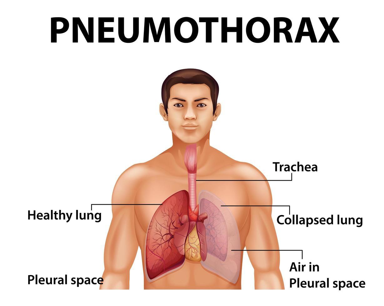 pneumothorax educatief diagram vector