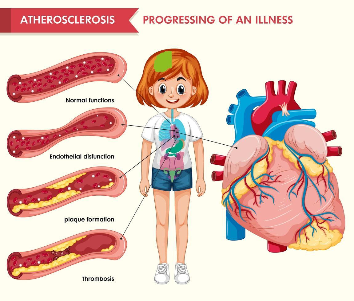 wetenschappelijke medische illustratie van atherosclerose vector