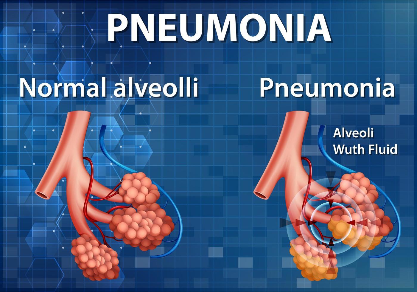 vergelijking van gezonde longblaasjes en longontsteking vector