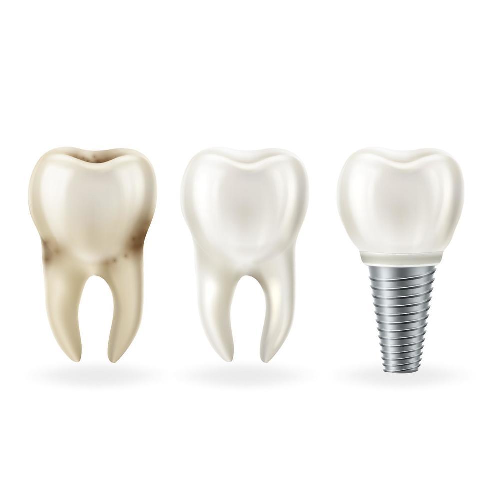 realistische gezonde tand, tand met cariës en tandheelkundig implantaat met schroef. vector illustratie