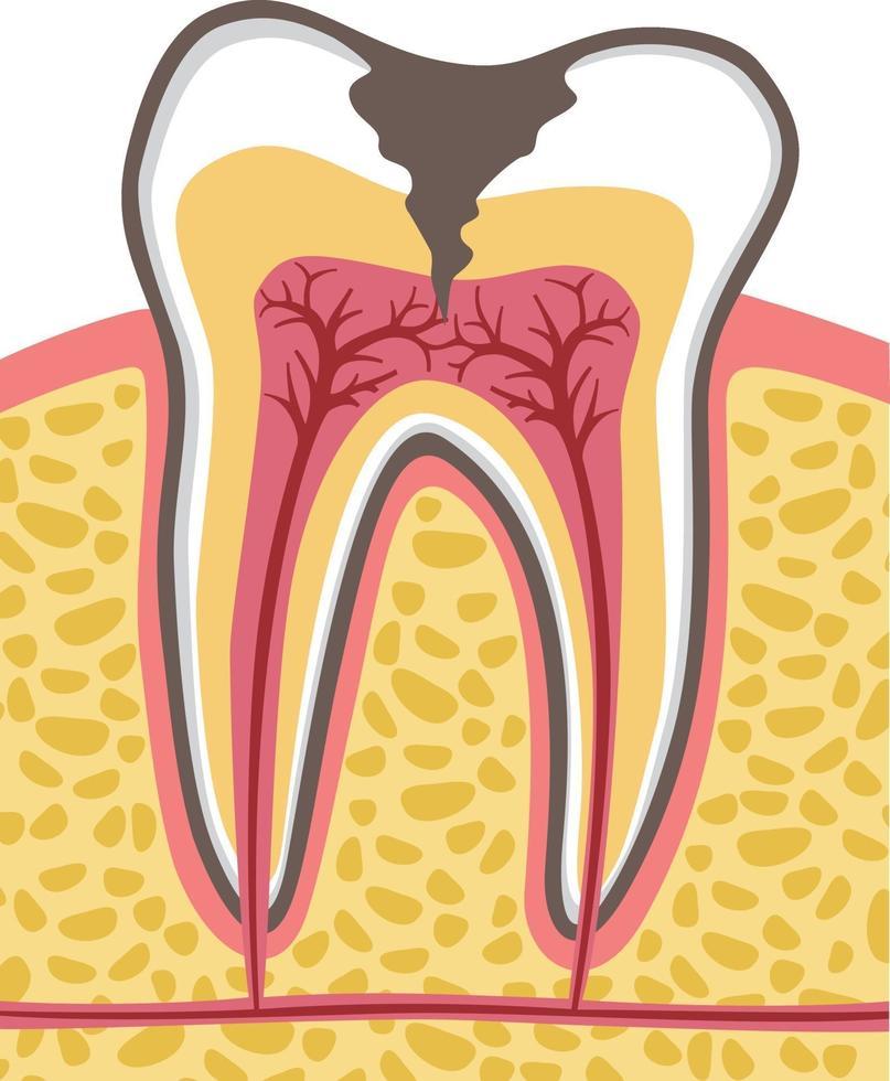 tanddoorsnede met cariës vector