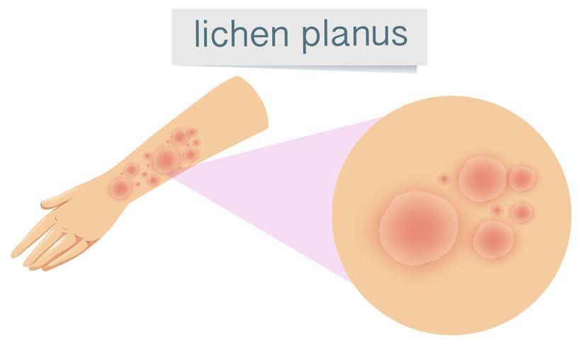Menselijke huid met Lichen Planus vector