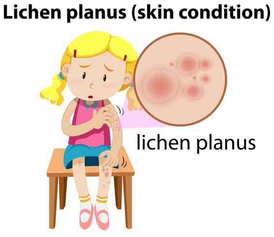 Lichen planus maginfied op meisje vector