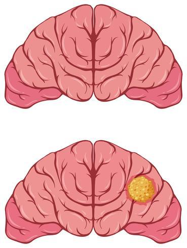 Menselijk brein met kanker vector