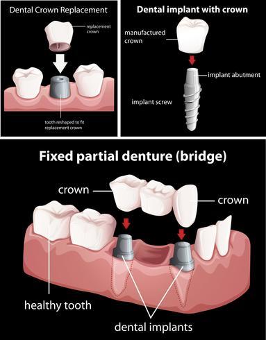 Tandheelkundige ingrepen op zwart vector