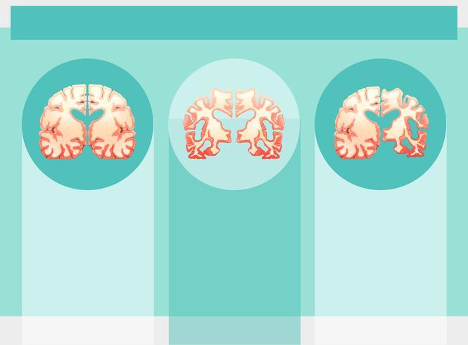 Achtergrondmalplaatje met menselijke hersenen vector