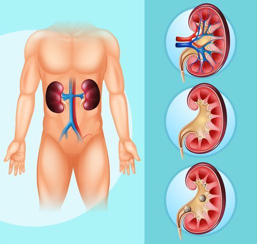 Menselijke en nierstenen vector
