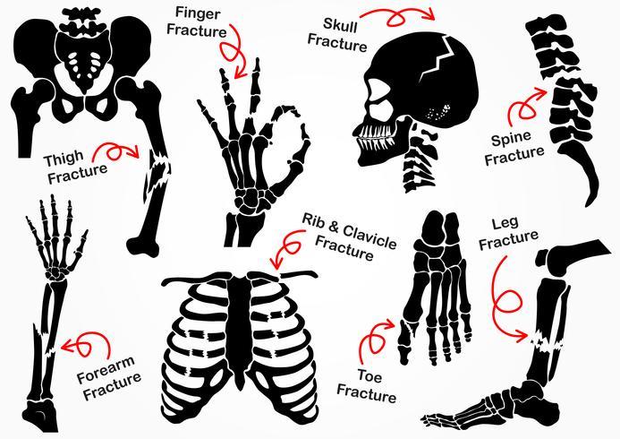 Stel botbreuk pictogram (bekken, heup, dij (femur), hand, pols, vinger, schedel, gezicht, wervel, arm, elleboog, thorax, voet, hiel, been) zwart-wit ontwerp (zorgconcept) vector