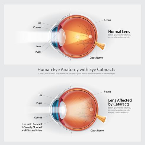 cataract visus stoornis en normale oog visie anatomie vector illustratie