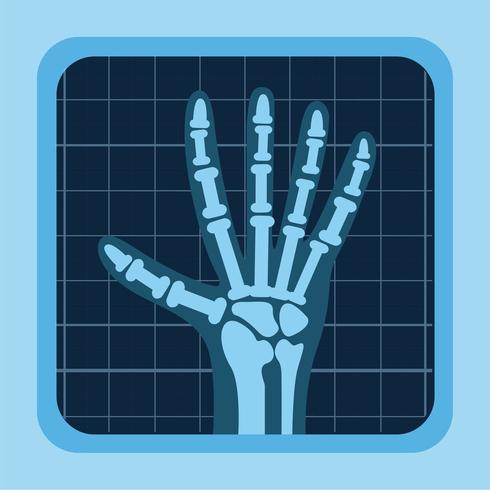 x stralen van de hand vector