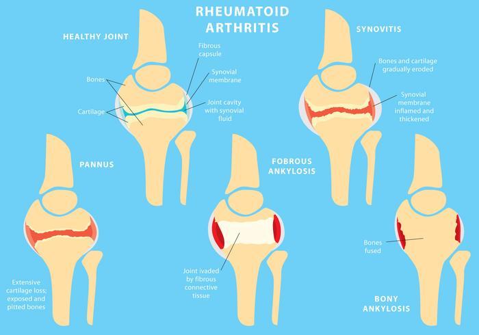 Gezamenlijke reumatoïde artritis vector