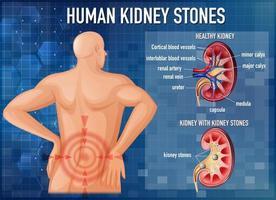 vergelijking van gezonde nier en nier met stenen vector