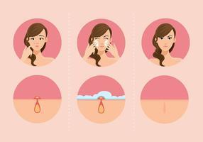 Meisjes En Pimples Gratis Vector