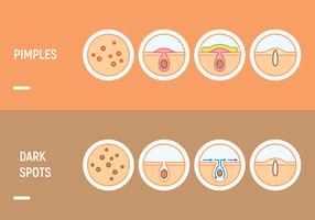 pimple huidproblemen vector