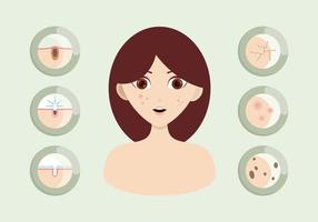 Pimple Illustratie vector