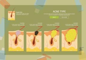 Gratis Acne Type Illustratie vector