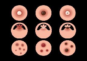 Pimple Pictogrammen Vector