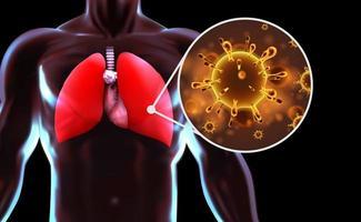 virussen in menselijke longen, coronavirus