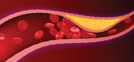 slagaders met verstopt vet dat bloedstolsels veroorzaakt.