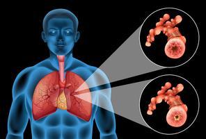 Diagram met menselijke longen en ziekte vector