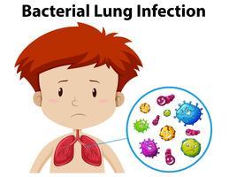 Een jongen bacteriële longinfectie vector