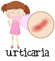 Jong meisje met urticaria vector