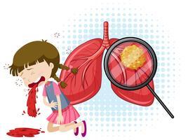 Een vector van tuberculose