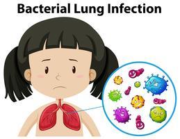 Een vector van bacteriële longinfectie