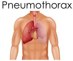 Een menselijke anatomie van pneumothorax