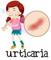 Een meisje met urticaria op witte achtergrond