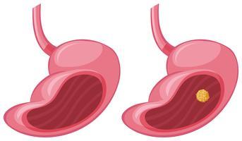 Menselijke maag en kanker vector
