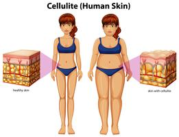 Een vergelijking van vrouwen met cellulitis
