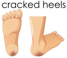 Een set van menselijke voet met gebarsten hielen vector