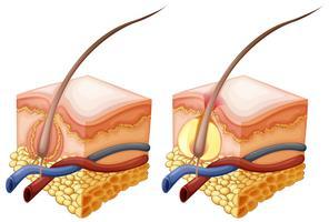 Diagram toont haar en onder de menselijke huid vector