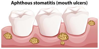 Menselijke anatomie van afteuze stomatitis
