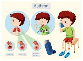Een menselijke anatomie en gezondheid Astma vector