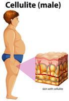 Een dikke man met cellulitis