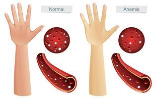 menselijke anatomie vector van bloedarmoede