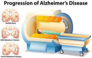 Voortgang van de ziekte van Alzheimer vector