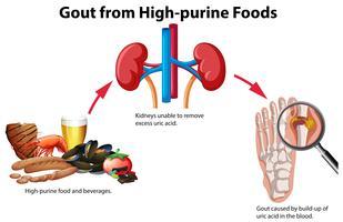 Jicht van High-purine Foods vector
