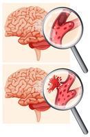 menselijk brein en hemorragische beroerte vector