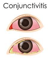 Diagram met conjunctivitis bij de mens