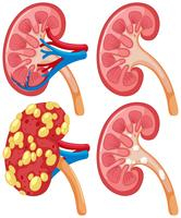 Diagram van nier met ziekte