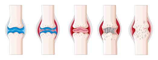 Reumatoïde artritis in het menselijk lichaam vector
