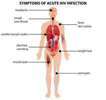 Diagram met symptomen van acute HIV-infectie